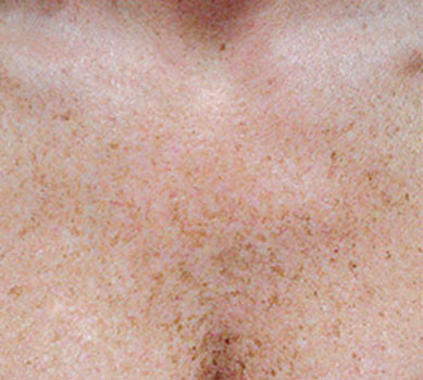 Les taches de pigment sur la personne du foie